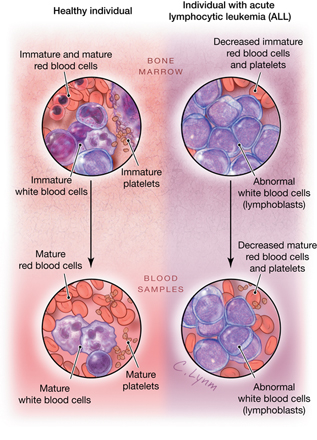 Bone density in acute leukemia