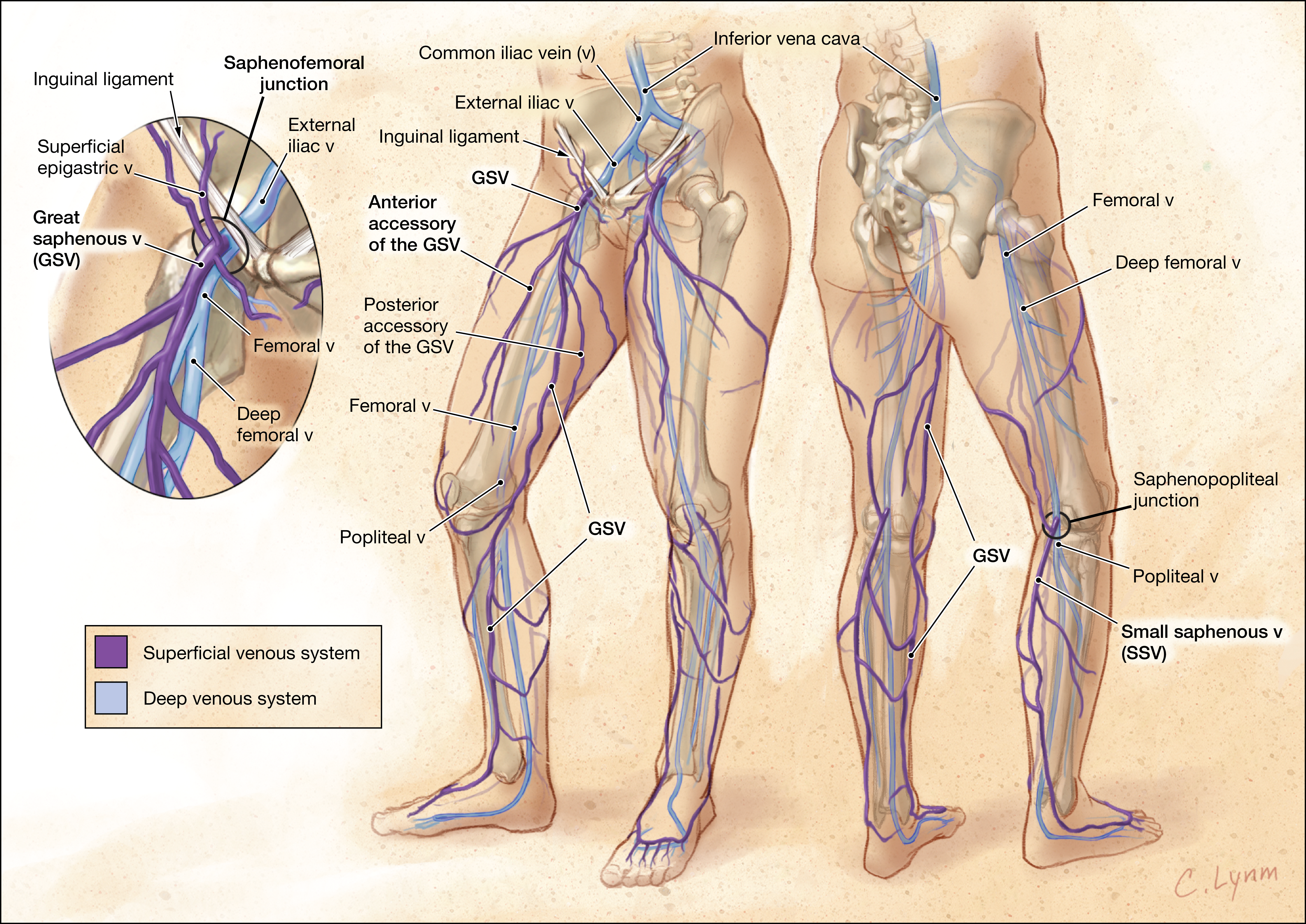 Management Of Varicose Veins And Venous Insufficiency Dermatology
