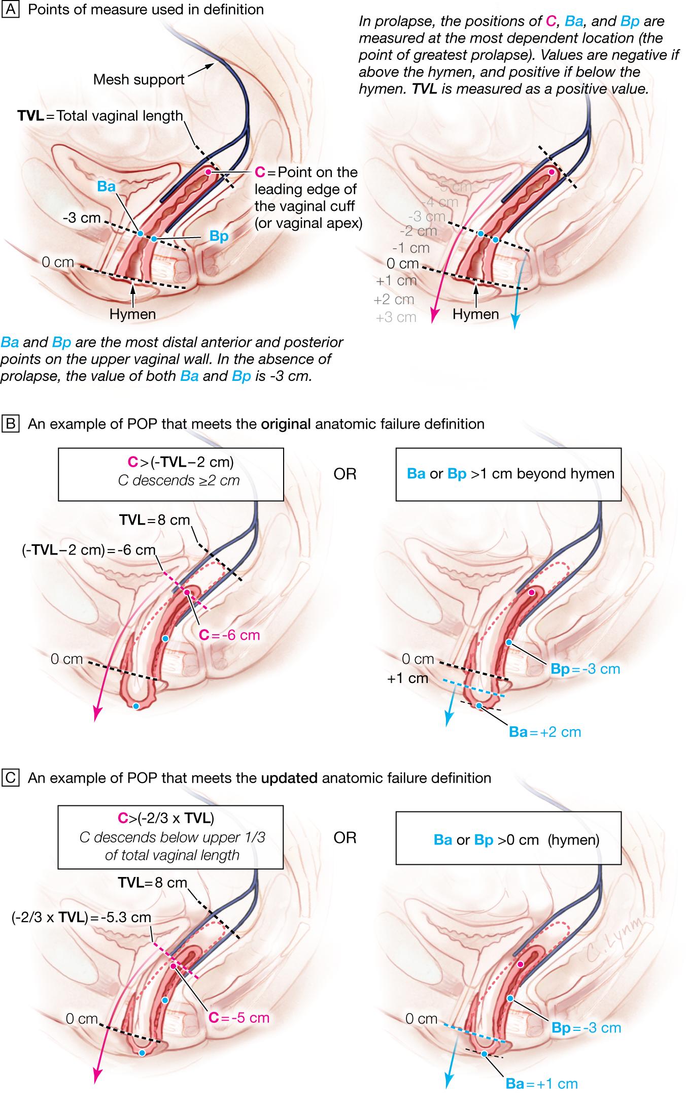 Definition of Anatomic Failure Following Surgical Repair of Pelvic Organ  Prolapse (POP