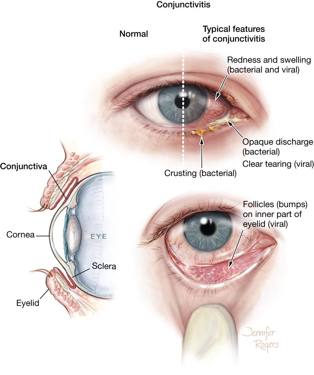 Conjunctivitis External Eye Disease Jama Jama Network