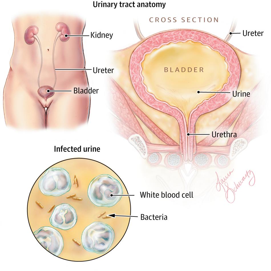 Urinary Tract Infections In Older Women Geriatrics Jama Jama
