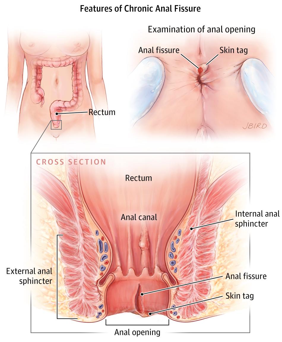 Anal Fissure Gastroenterology Jama Jama Network