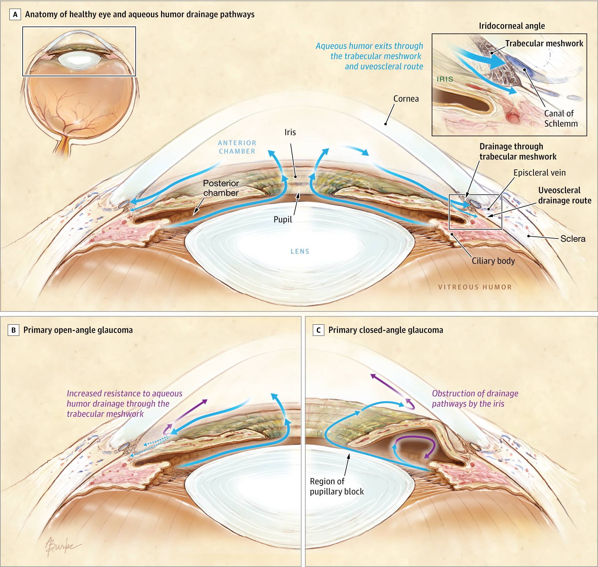 The Pathophysiology And Treatment Of Glaucoma A Review Genetics