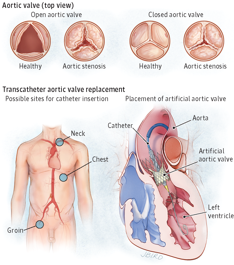 Transcatheter Aortic Valve Replacement Valvular Heart Disease