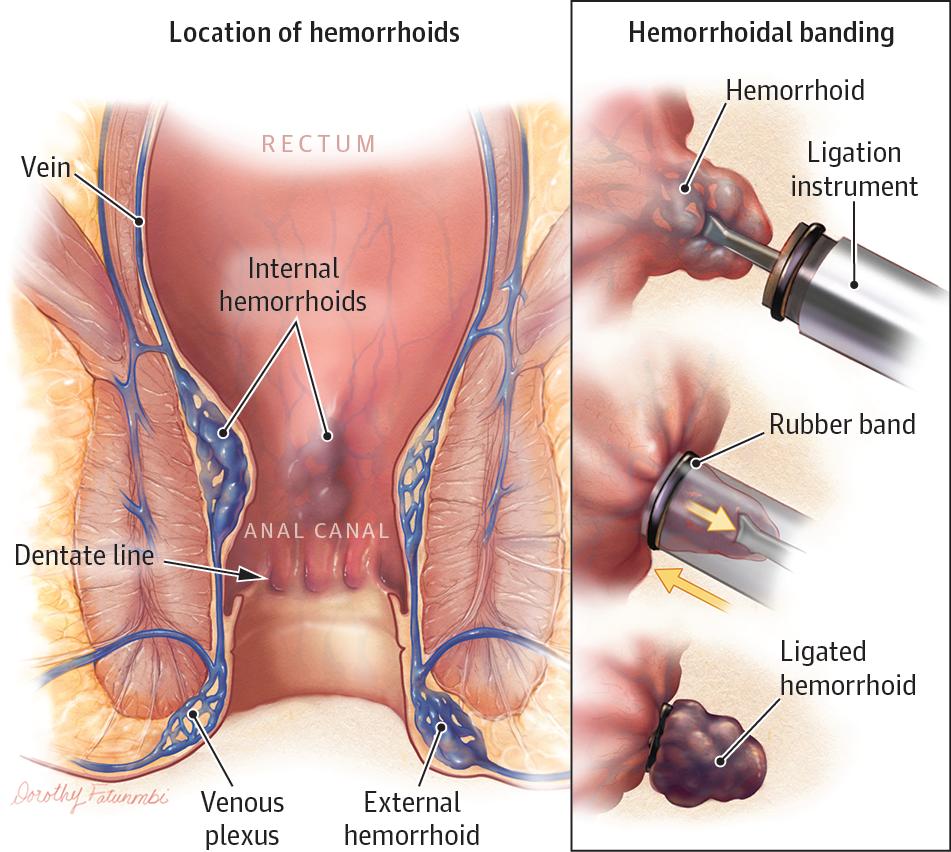 Hemorrhoids Gastroenterology Jama Jama Network