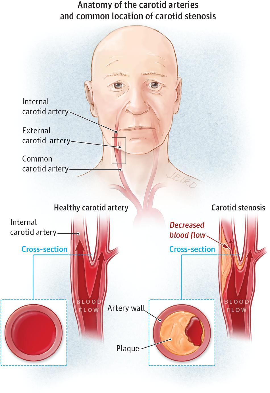 Testing For Carotid Stenosis Cerebrovascular Disease Jama
