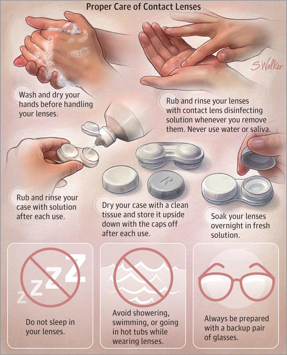 45f6080758c Image description not available. Cosmetic or prescription contact lenses ...