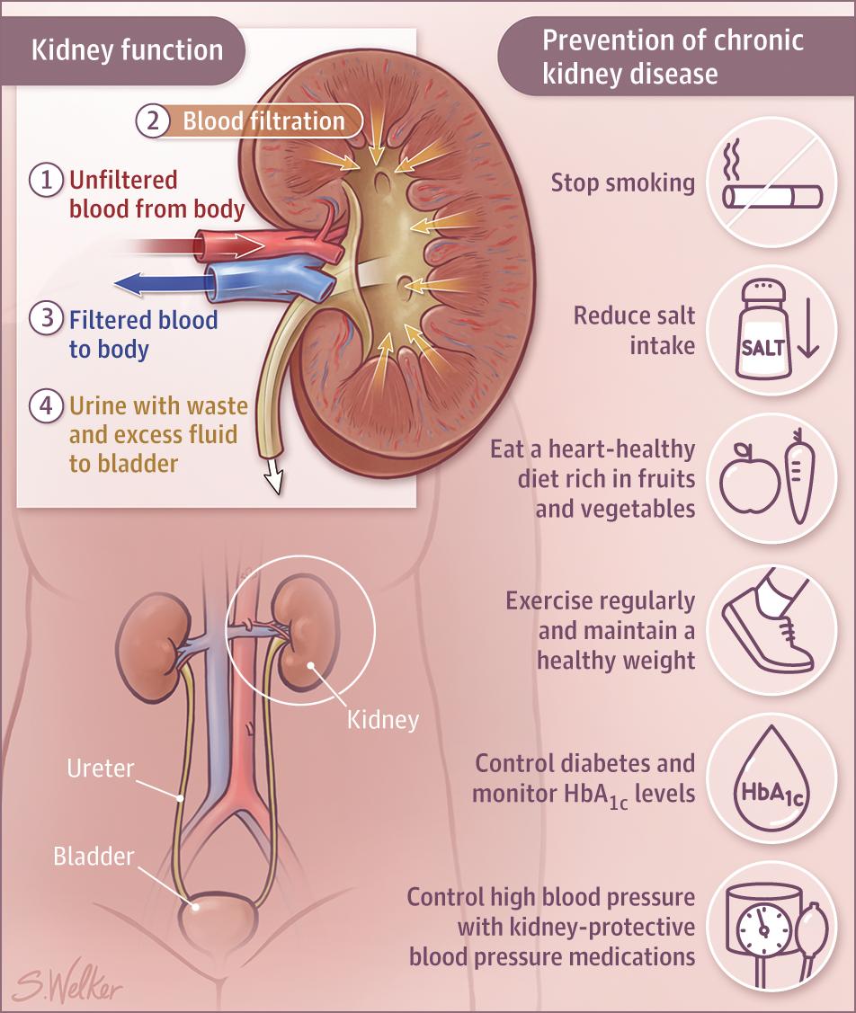 Chronic Kidney Disease Chronic Kidney Disease Jama Jama Network