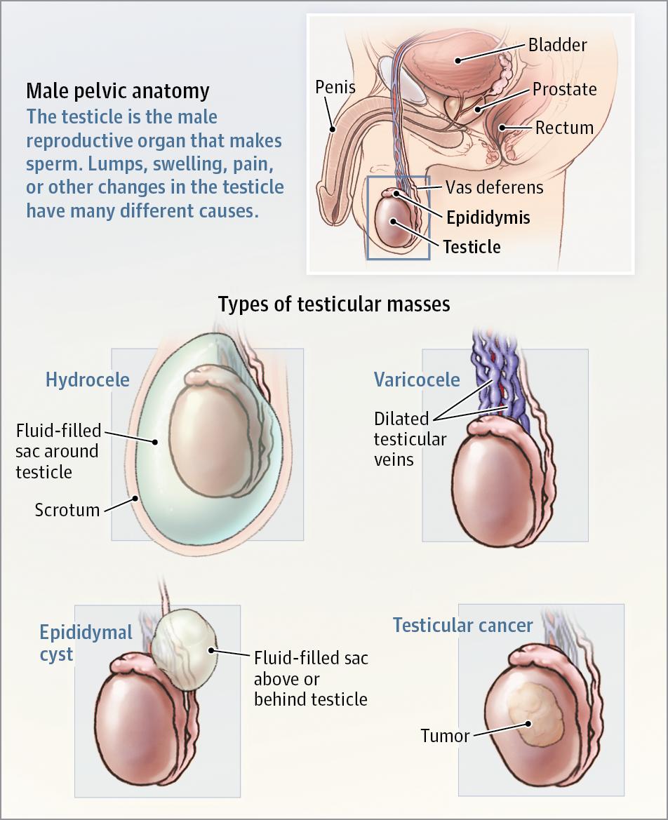 Testicular Mass Oncology Jama Jama Network