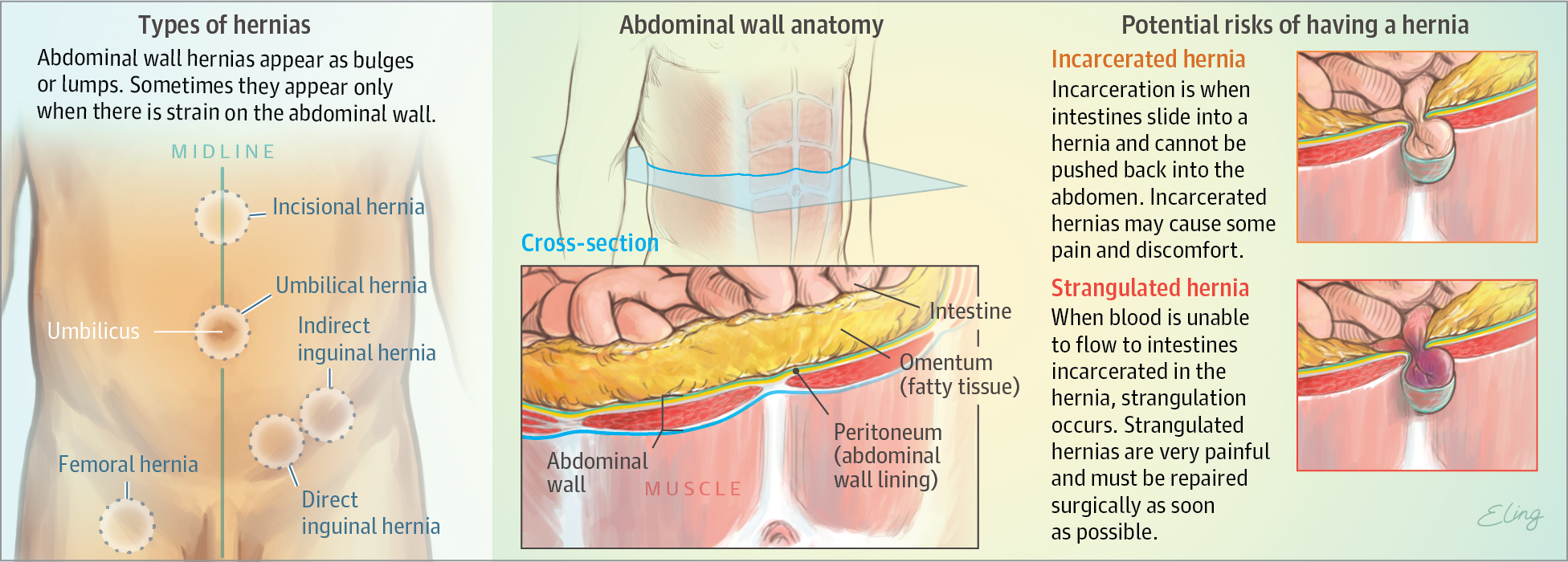 What Is An Abdominal Wall Hernia Surgery Jama Jama Network