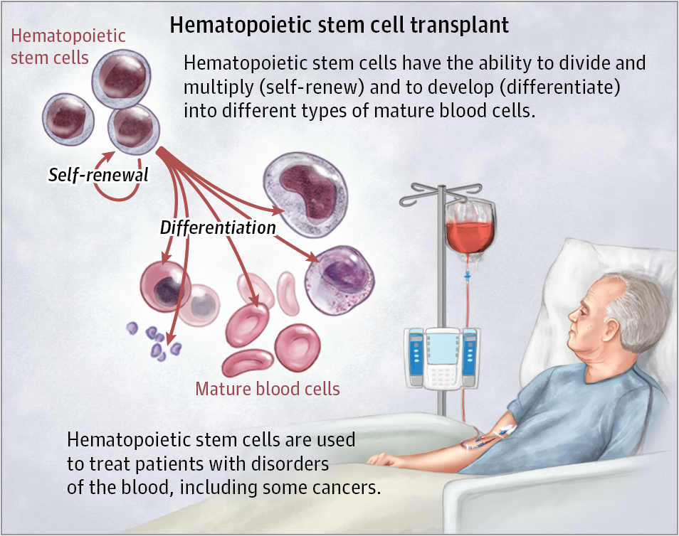 Stem Cell Treatments Stem Cell Transplantation Jama Jama Network