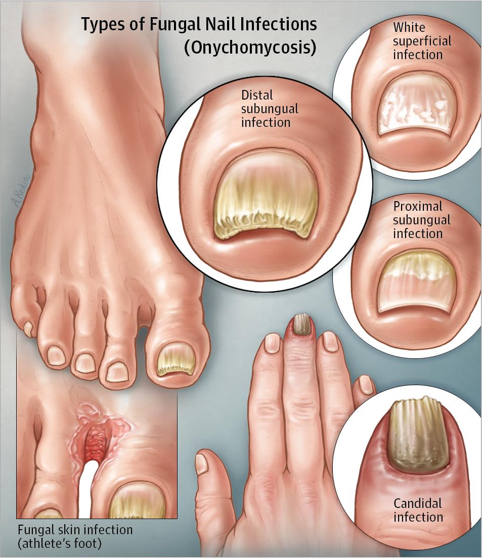 Fungal Nail Infection Dermatology Jama Jama Network