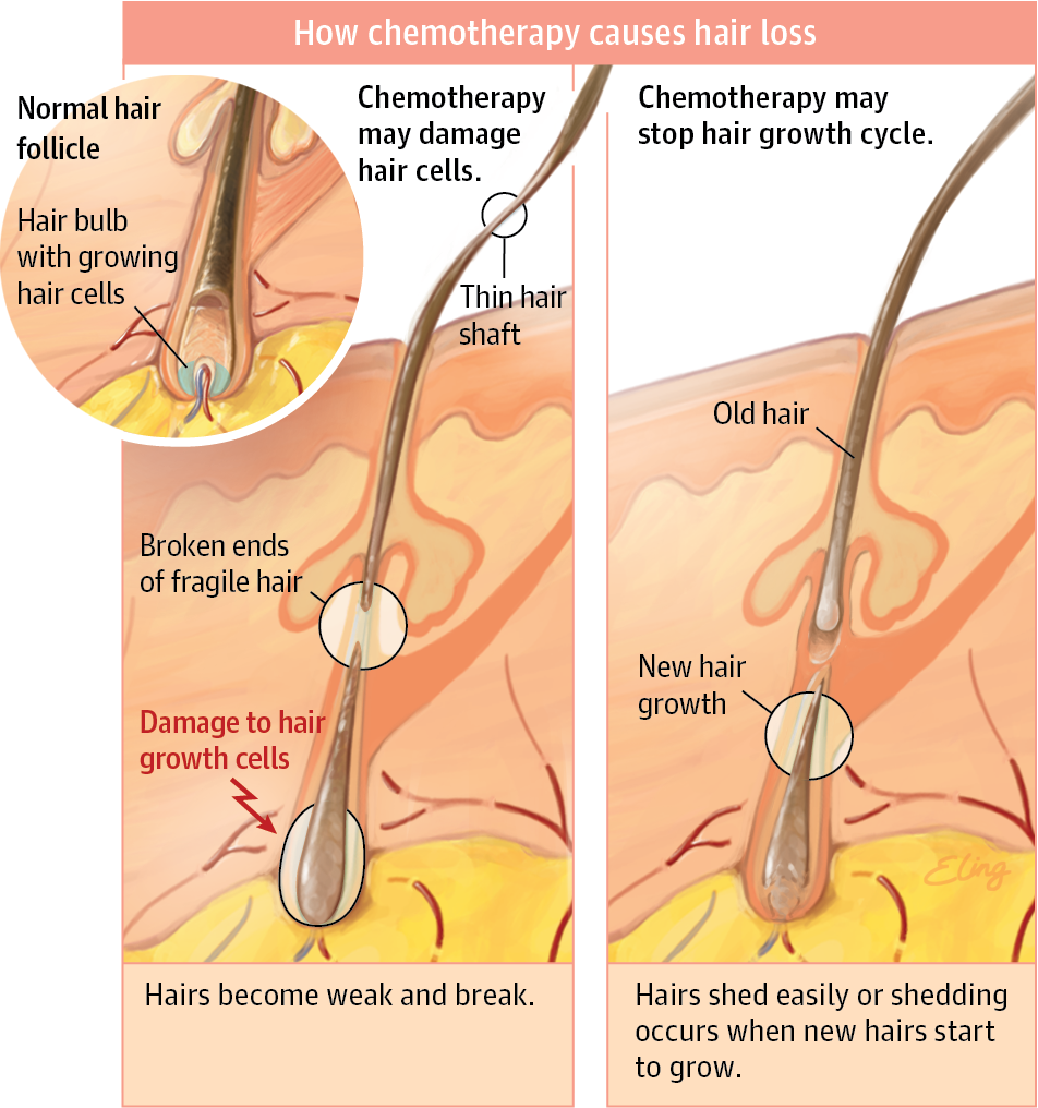 Chemotherapy And Hair Loss Clinical Pharmacy And Pharmacology