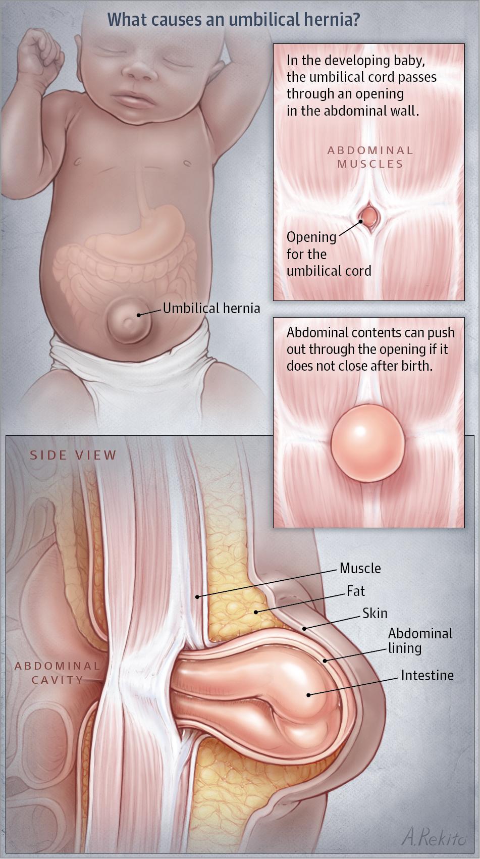 Umbilical Hernia Neonatology Jama Jama Network