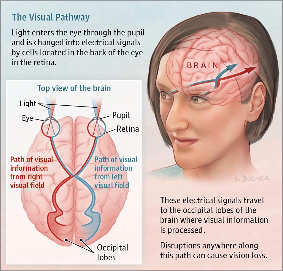 Sudden Vision Loss Cerebrovascular Disease Jama Jama Network