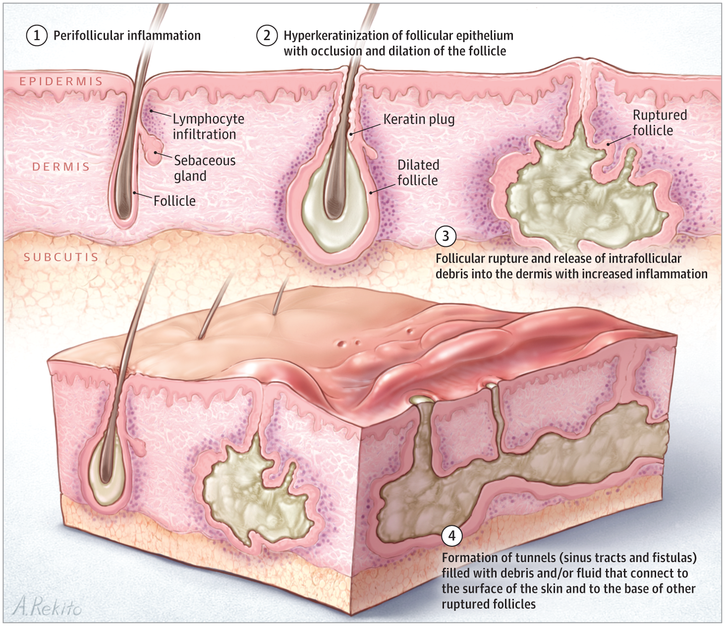 Hidradenitis Suppurativa: Advances in Diagnosis and ...