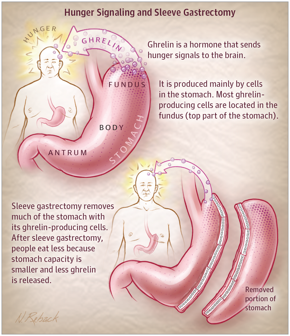 Sleeve Gastrectomy For Weight Loss Bariatric Surgery Jama