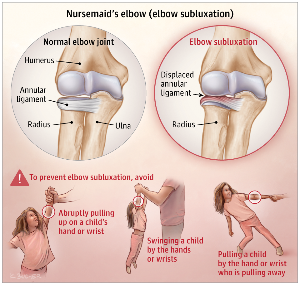 Nursemaids Elbow Elbow Subluxation Emergency Medicine Jama