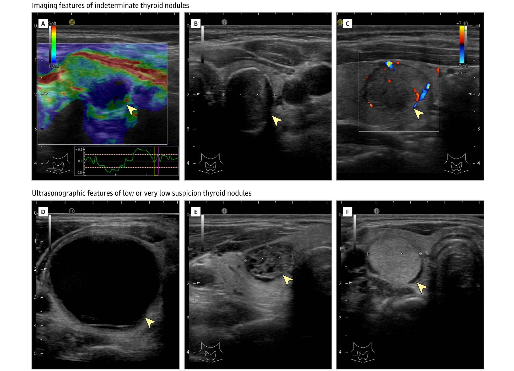 The Diagnosis and Management of Thyroid Nodules: A Review ...