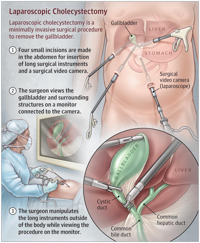 Laparoscopic Cholecystectomy Gastrointestinal Surgery Jama