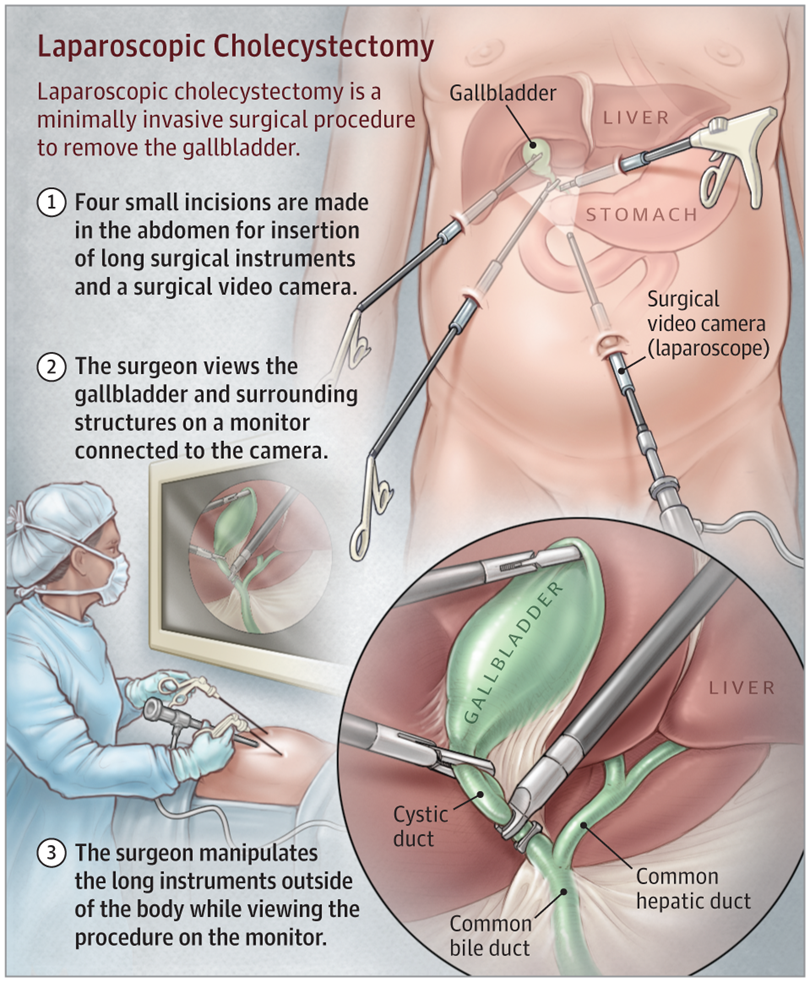 Laparoscopic Cholecystectomy Gastrointestinal Surgery Jama