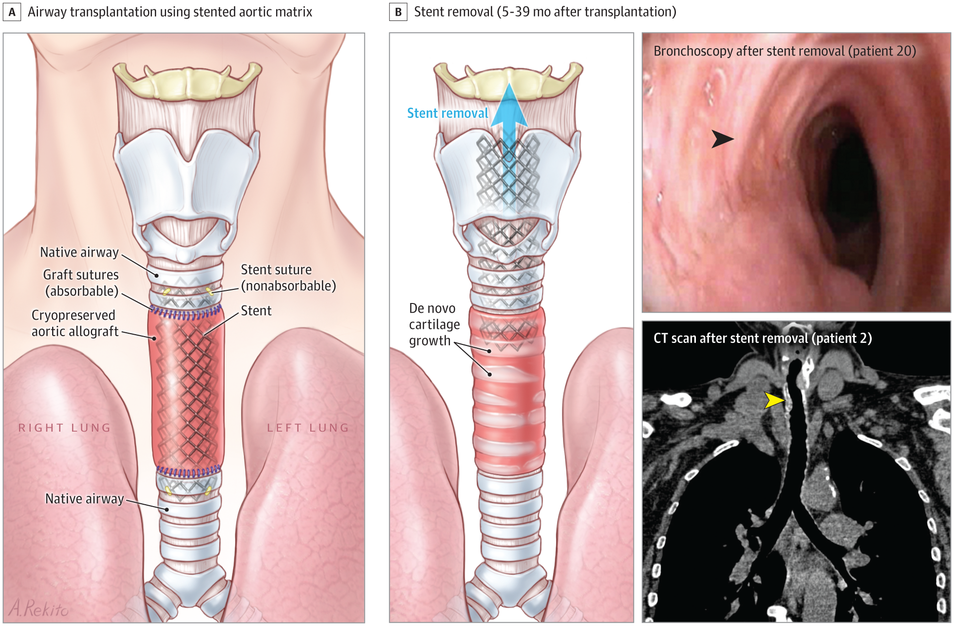 Feasibility Of Bioengineered Tracheal And Bronchial Reconstruction