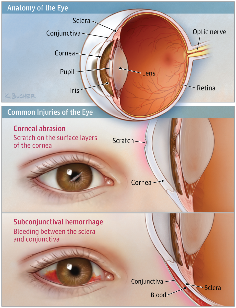 Injury To The Eye Emergency Medicine Jama Jama Network