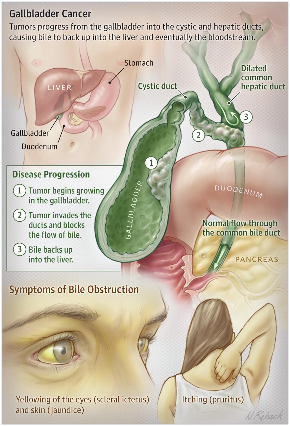 Gallbladder Cancer Gastroenterology Jama Jama Network