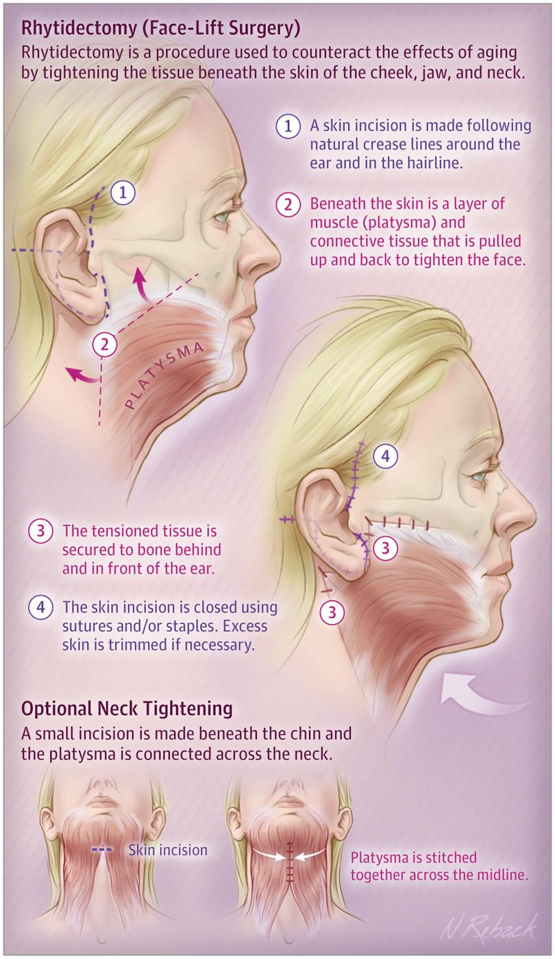 Rhytidectomy Face Lift Surgery Brow Face Forehead Lift Jama