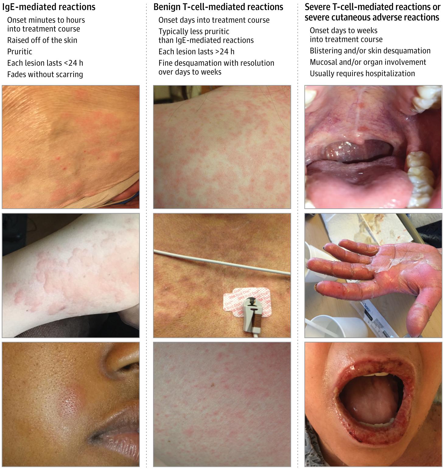 Penisilliini Allergia