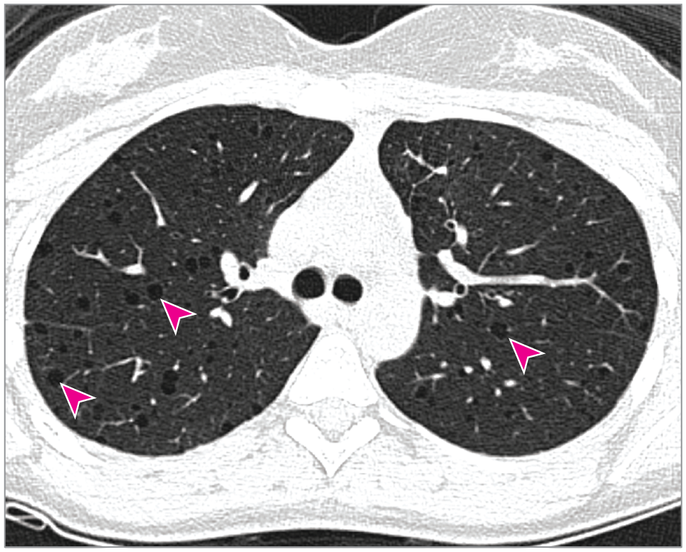 Serum Vascular Endothelial Growth Factor D in Cystic Lung Disease