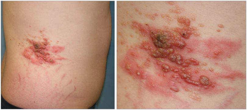 A 22-Year-Old Man With Painful Vesicles on His Flank ...