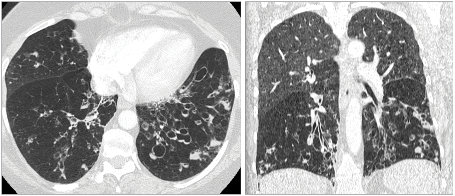 A Woman With Dyspnea and Bronchiectasis