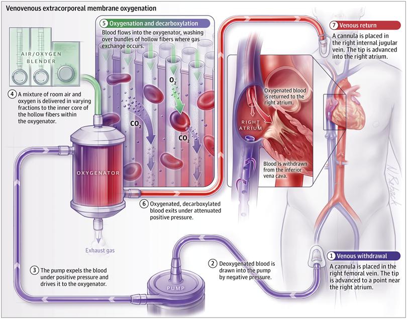 [JAMA综述]:呼吸衰竭及其他适应症成年患者的体外生命支持