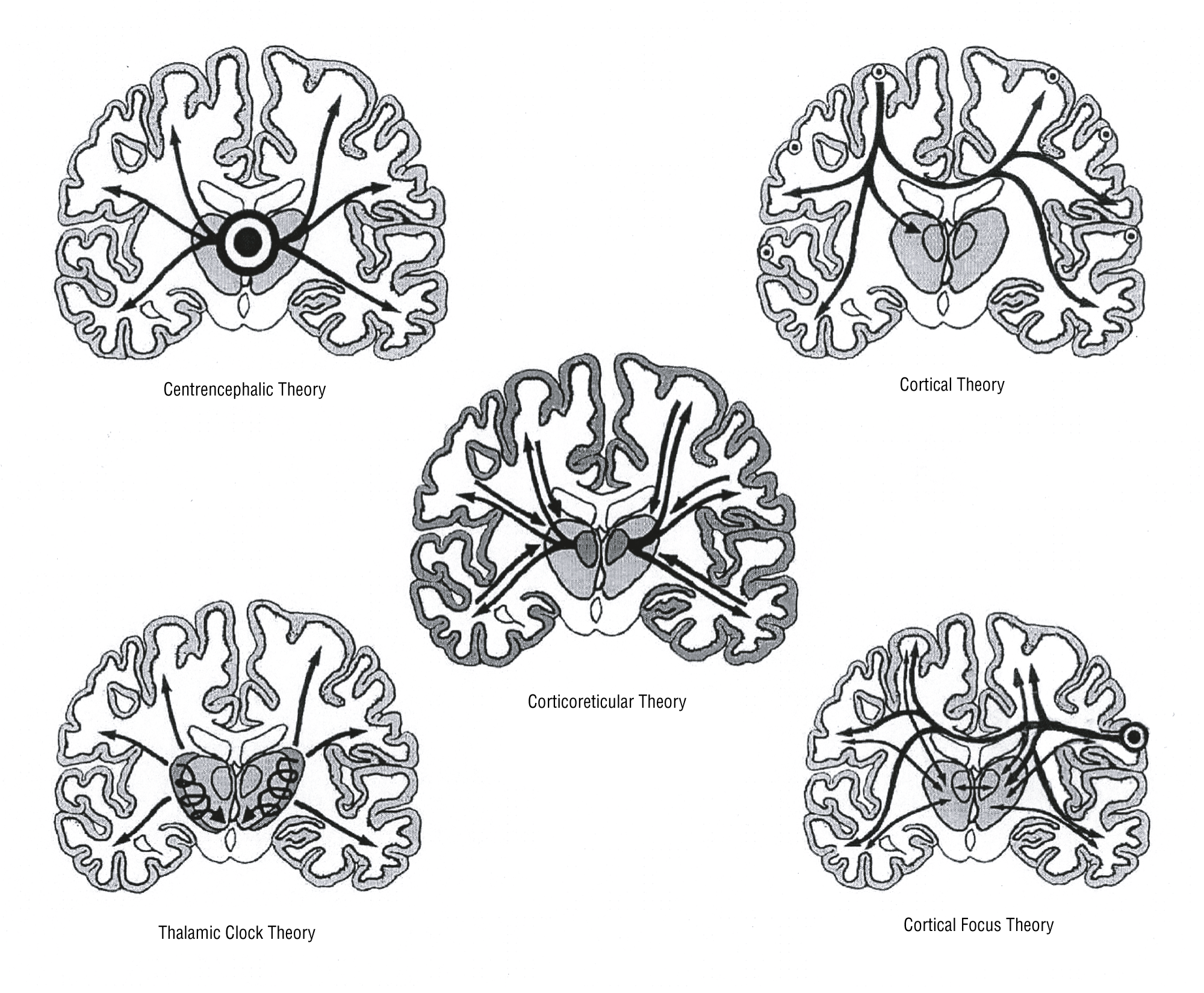 Schematic impression of the 5 theories on the origin of generalized absence  epilepsy. On the