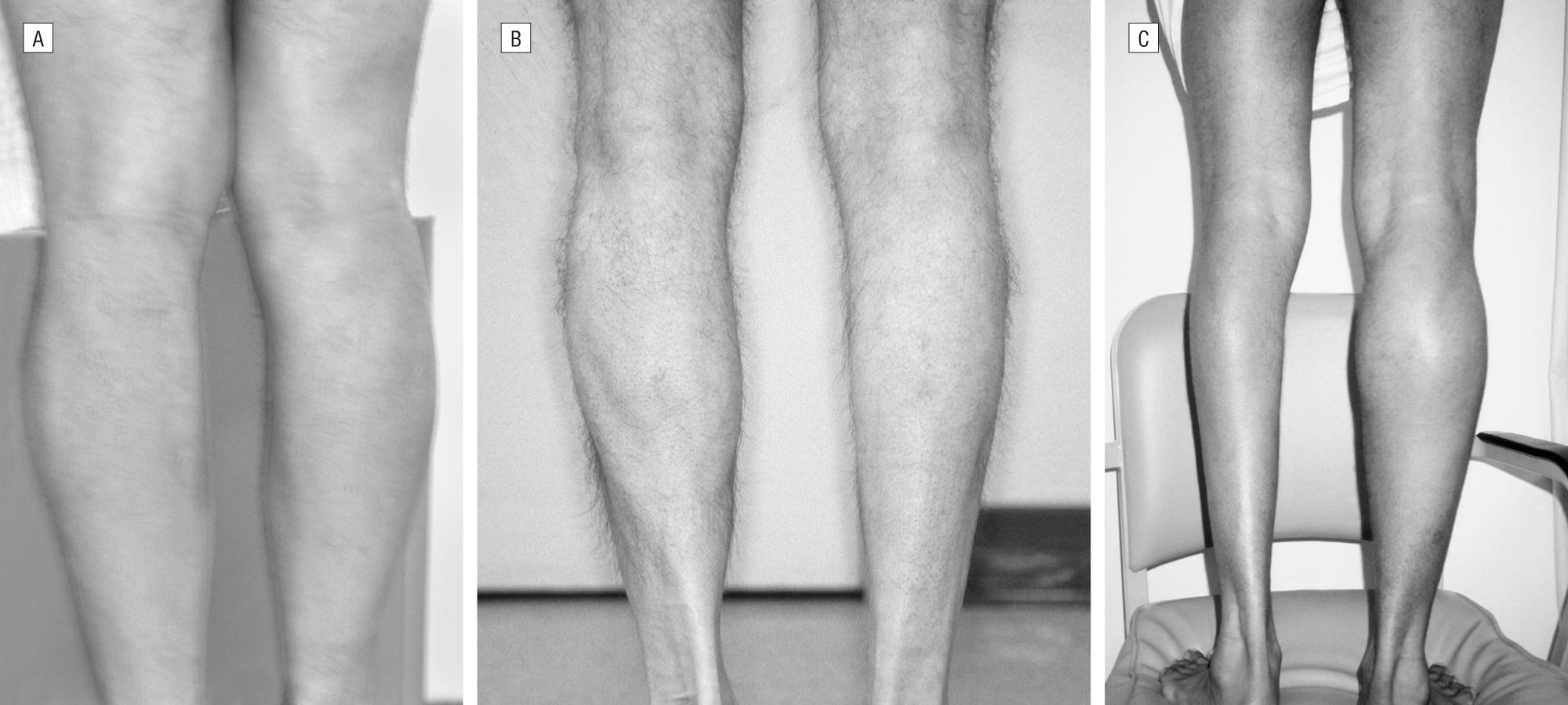 Benign Calf Amyotrophy Clinicopathologic Study Of 8 Patients