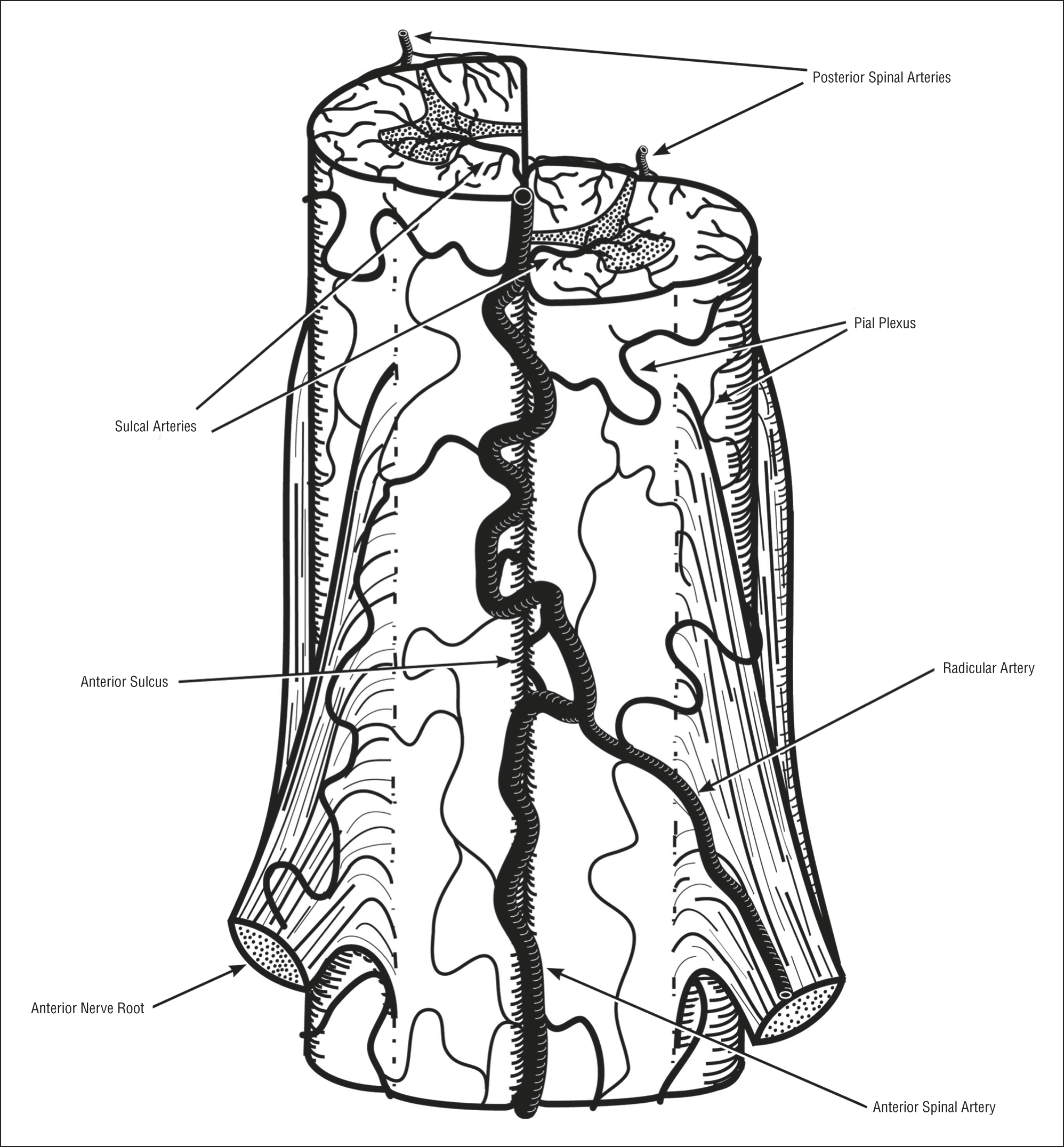 Spinal Cord Ischemia Clinical And Imaging Patterns Pathogenesis