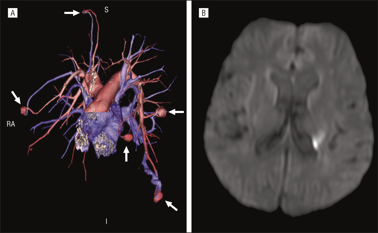 Multiple Pulmonary Arteriovenous Malformations in ...