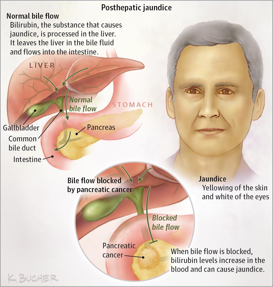 Jaundice Hyperbilirubinemia In Cancer Gastrointestinal Cancer