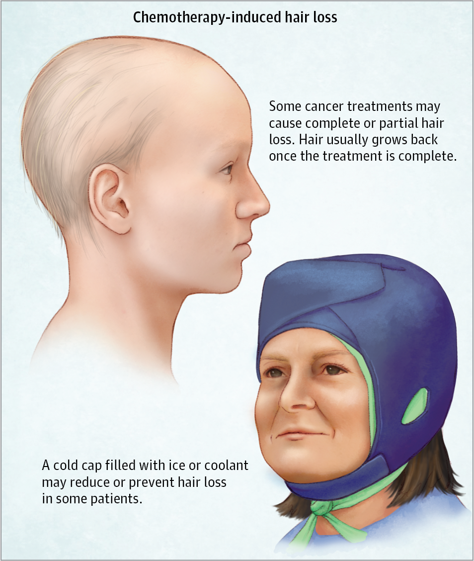Chemotherapy Induced Hair Loss Alopecia Clinical Pharmacy And