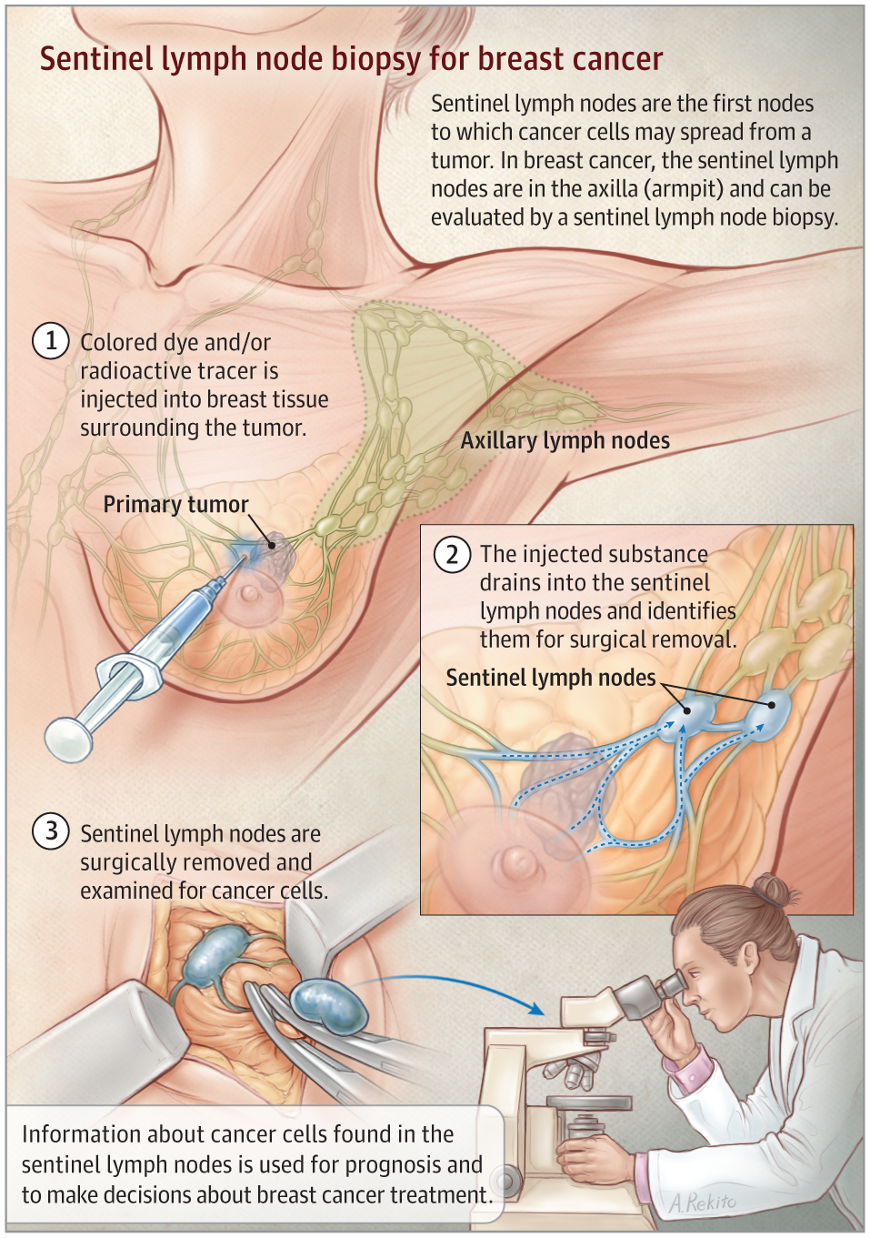 Lymphatic Mapping And Sentinel Lymph Node Biopsy For Breast Cancer