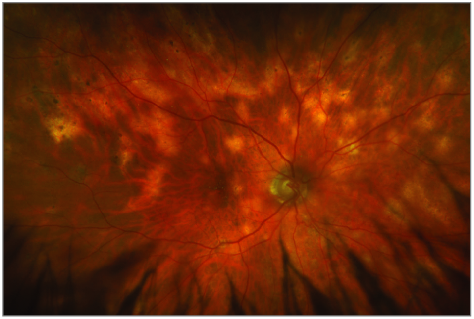 An 81-Year-Old Man With Multifocal Choroidal Lesions