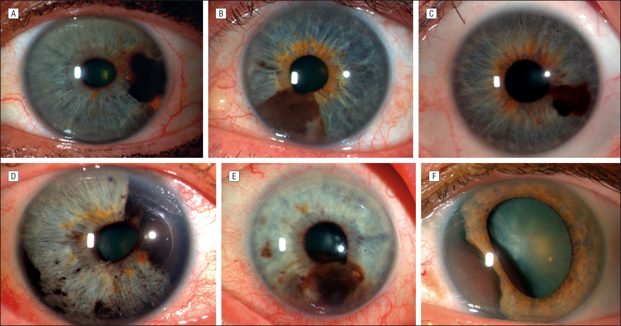 Iridocorneal Endothelial Syndrome Masquerading As Iris