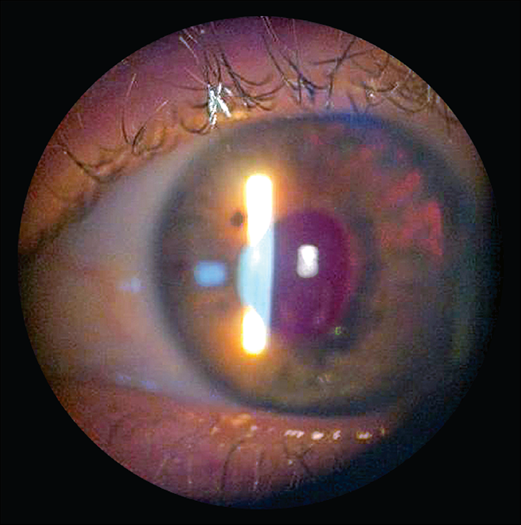 Ocular Injury After Laser Hair Reduction Treatment To The