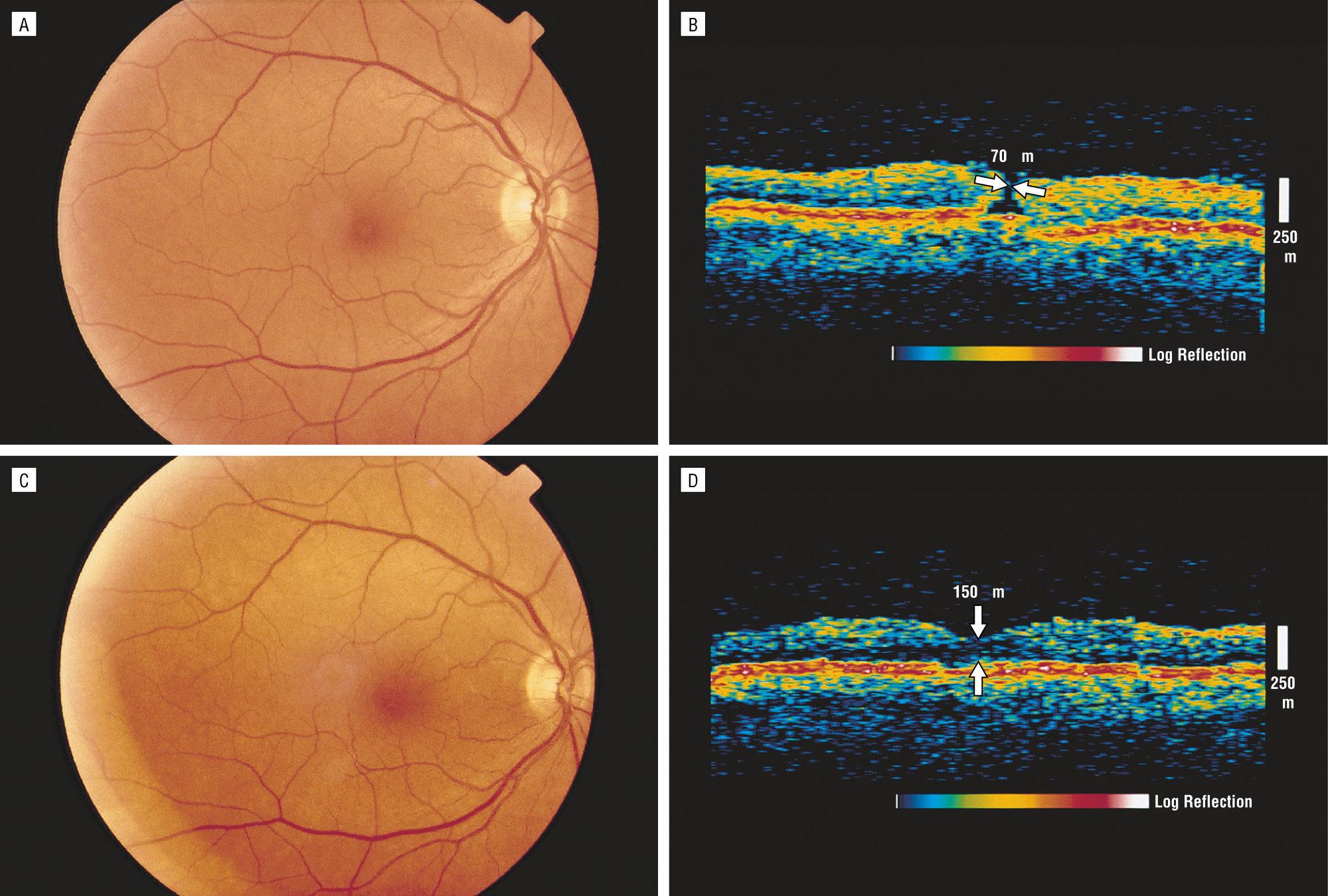 Anatomical Outcomes Of Surgery For Idiopathic Macular Hole As