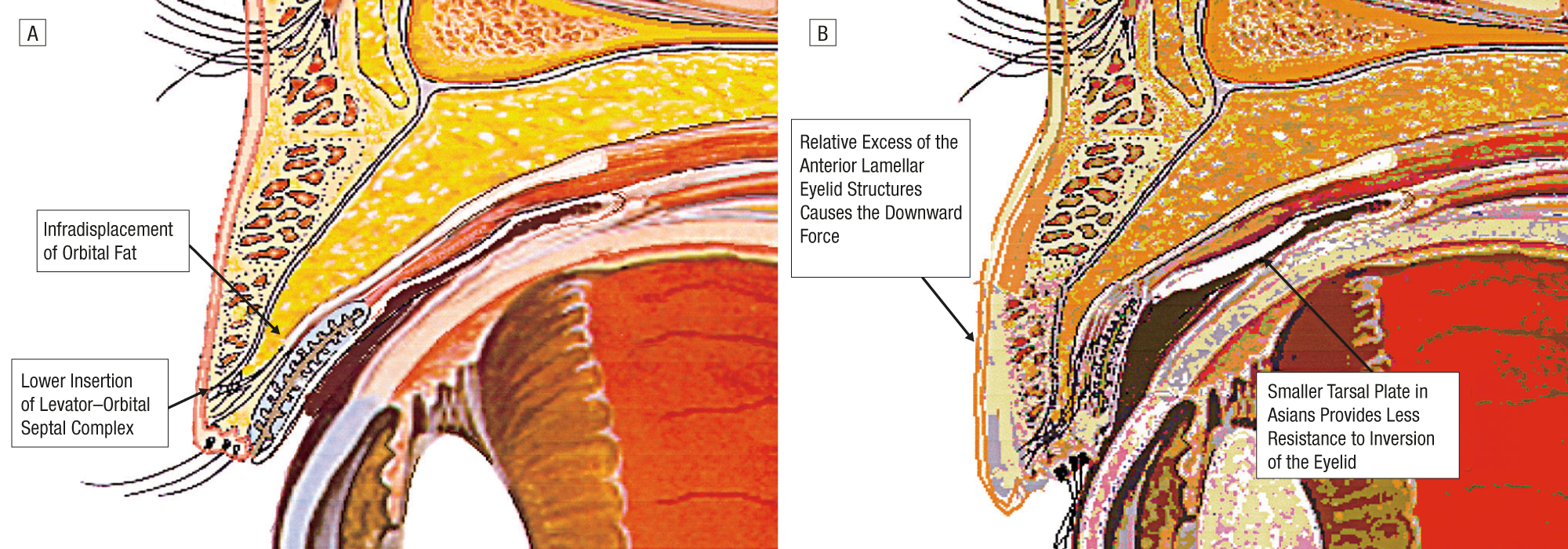 Involutional Lateral Entropion Of The Upper Eyelids A New Physical