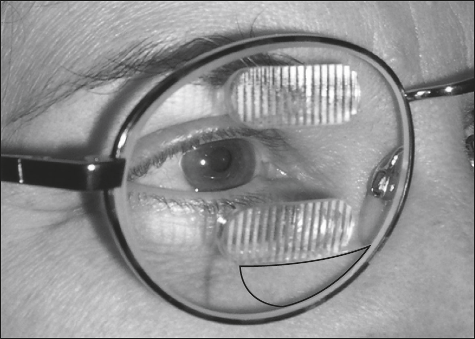 ca3883f8d89a Spectacles with permanent 40–prism diopter Fresnel prism segments developed  by Chadwick Optical