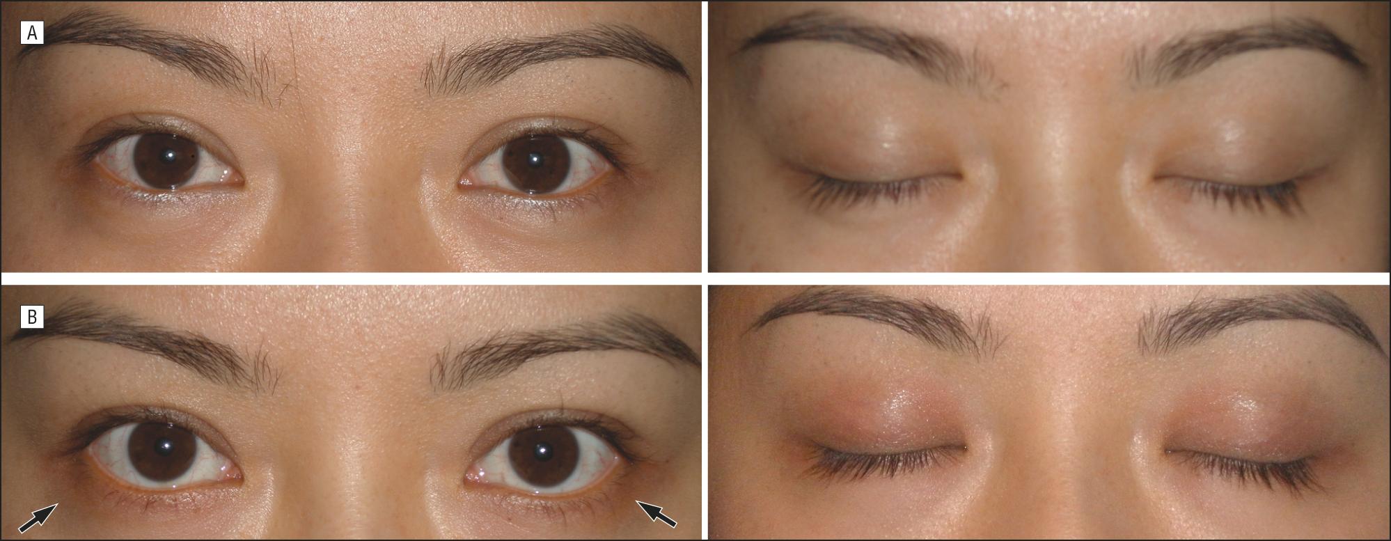 Latisse Induced Periocular Skin Hyperpigmentation Dermatology