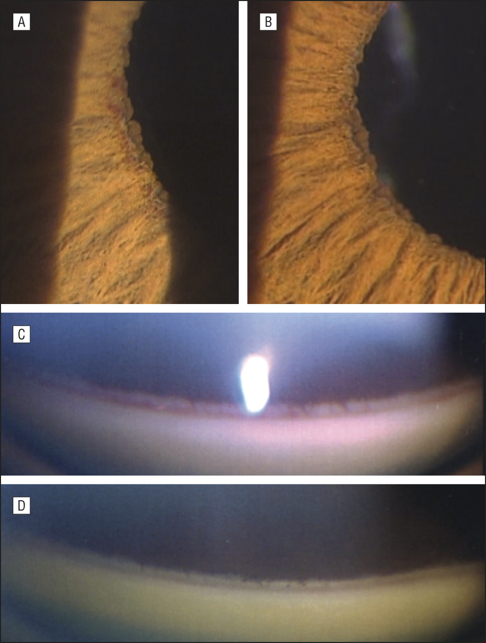 Angiographic Changes In Iris And Iridocorneal Angle