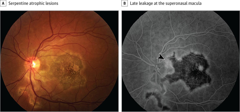 Serpiginous Choroiditis Ophthalmology Jama